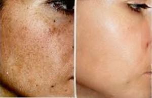 Die Pigmentflecke auf der Person die Behandlung malyschewa