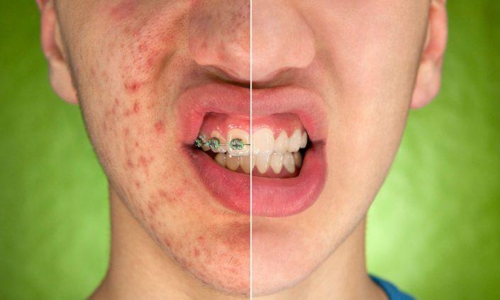Schluss mit Akne und Aknenarben