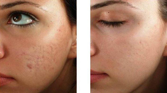 Microneedling Meso Kosmetik Behandlung