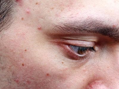 erwachsenen akne letzte