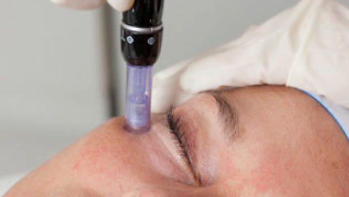 micro needling face treatment kosmetik studio basel