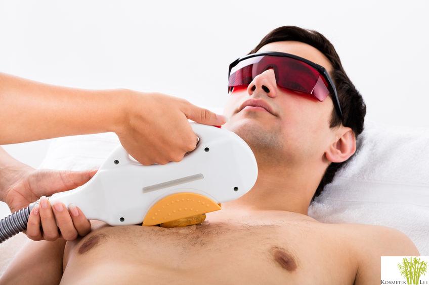 IPL statt Laser - Haarentfernung