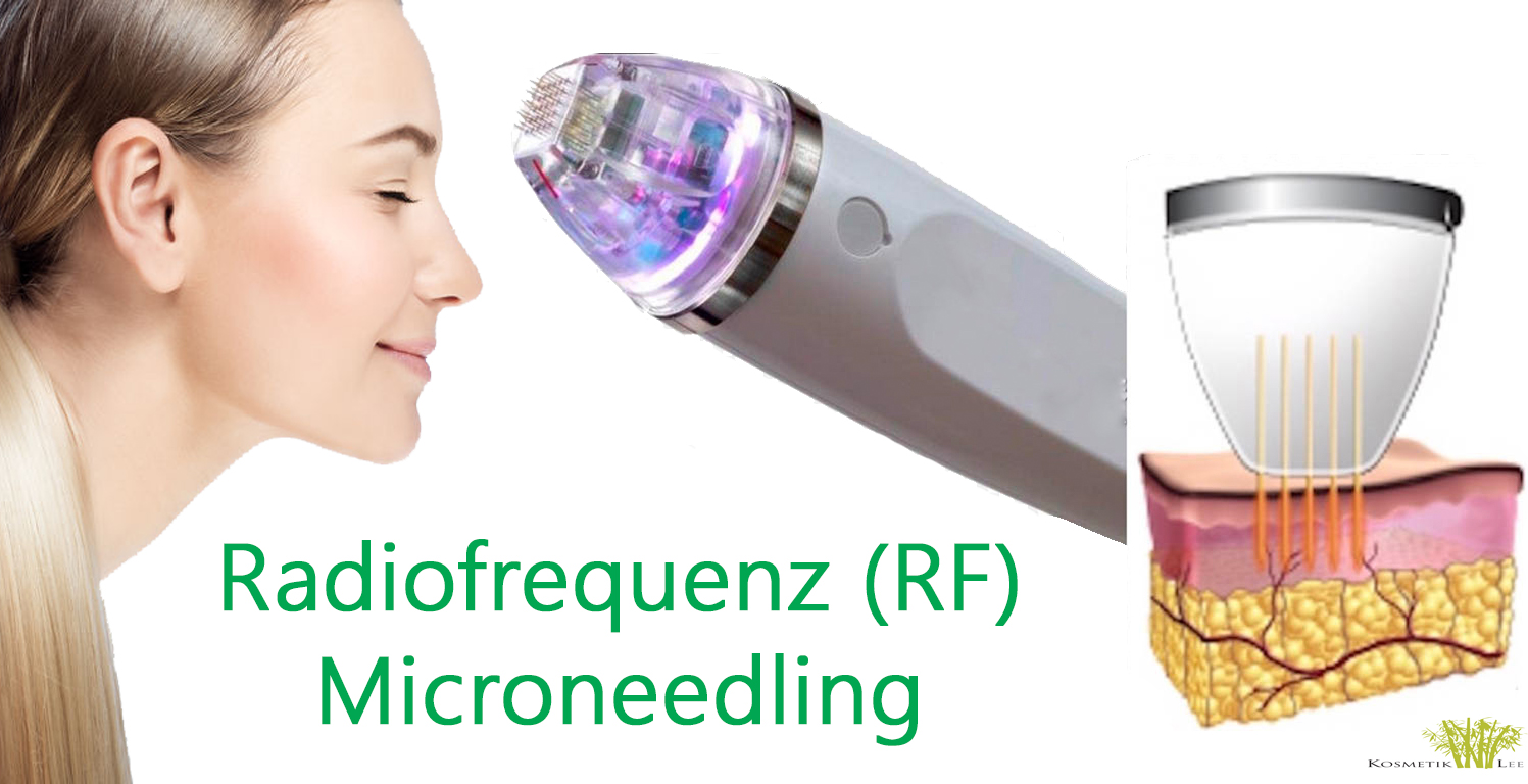 Microneedling Radiofrequenz